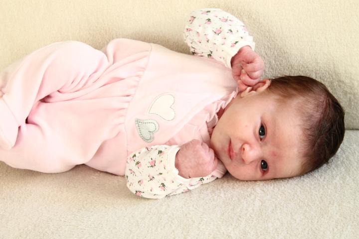Neugeborenenakne
