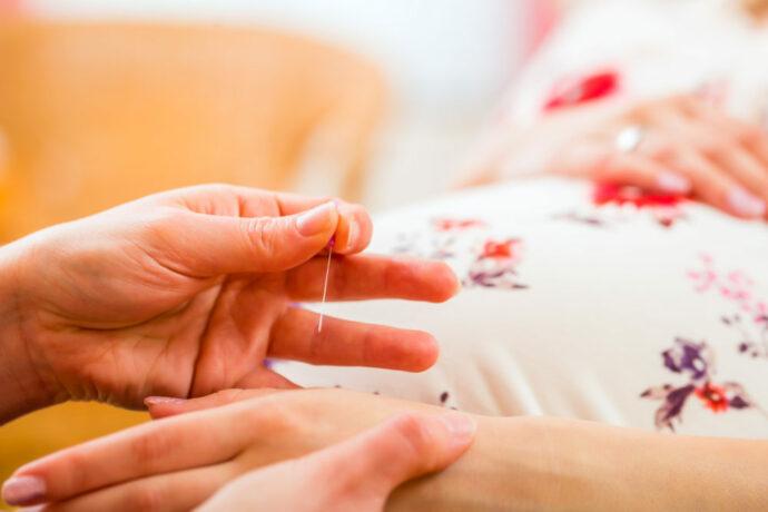 geburtsvorbereitende Akupunktur