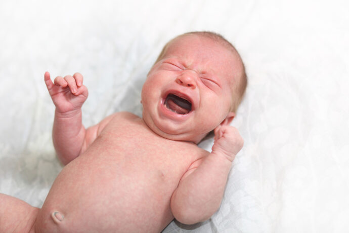 Baby schreit viel Kaiserschnitt