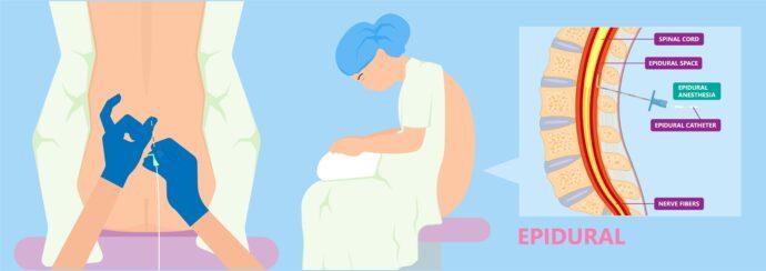 PDA Geburt PDK Anlage epidural