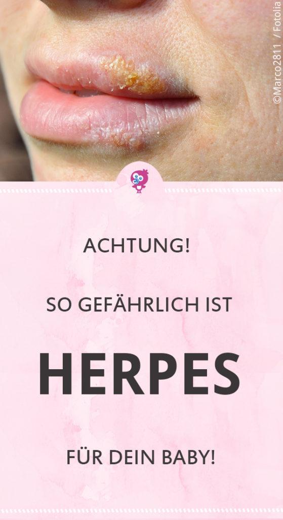 Herpes ➔ für uns Erwachsene ist das Virus zwar ungefährlich, für Neugeborene kann das Herpesvirus aber richtig gefährlich werden - unter Umständen sogar lebensbedrohlich! #baby #herpes #neugeborenes