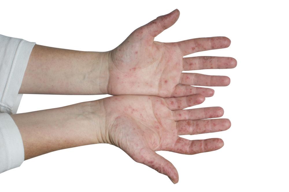 Hand Mund Fuß Krankheit Wie Lange Krankgeschrieben