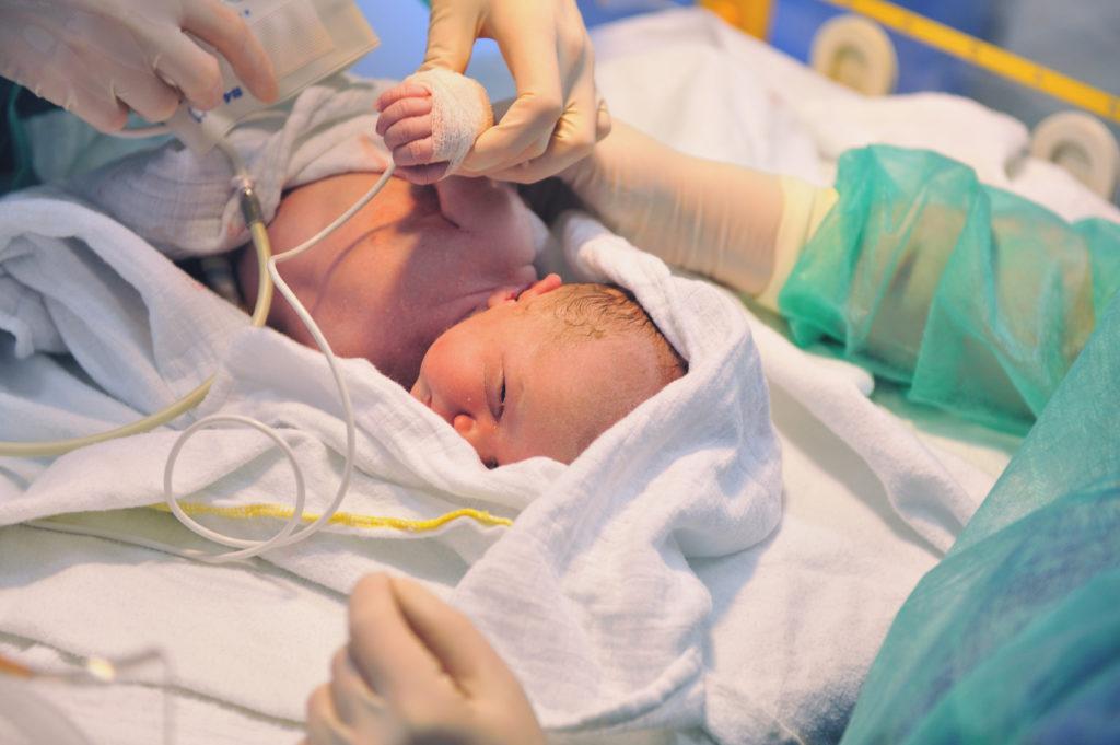 5 Dinge Die Du Für Die Ersten Stunden Nach Der Geburt Wissen