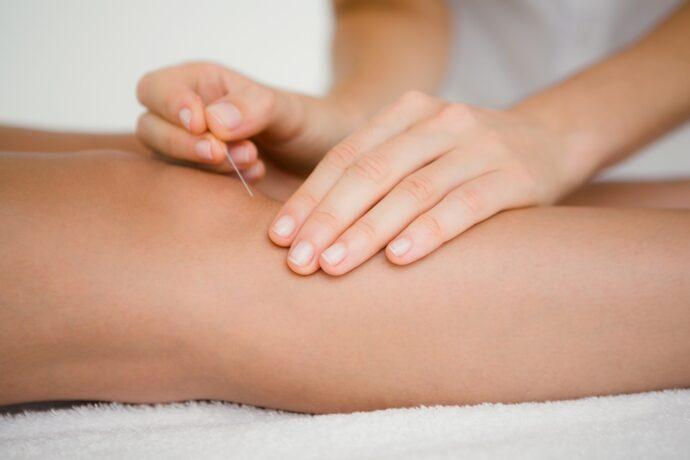 Akupunktur zur Geburtsvorbereitung - mein Erfahrungsbericht