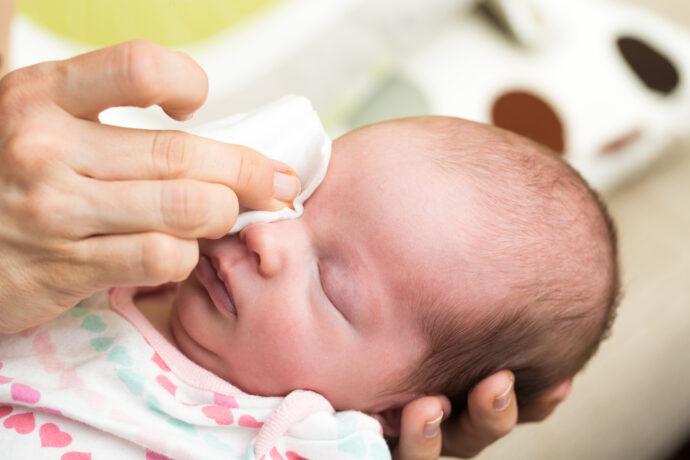 Tränenwegsstenose Baby, verklebte Augen, Bindehautentzündung, Baby Augen reinigen