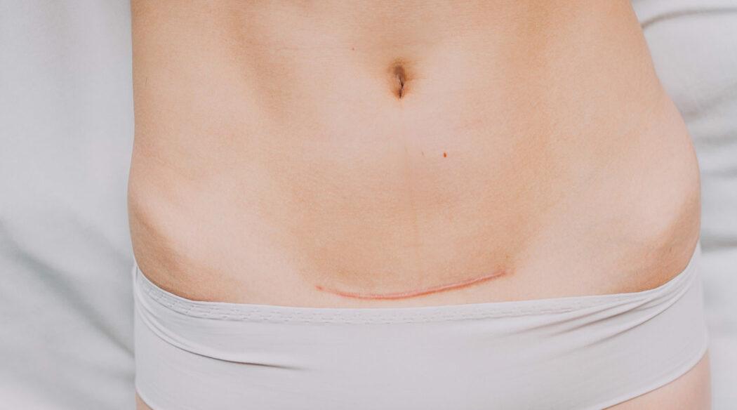 Kaiserschnittnarbe pflegen