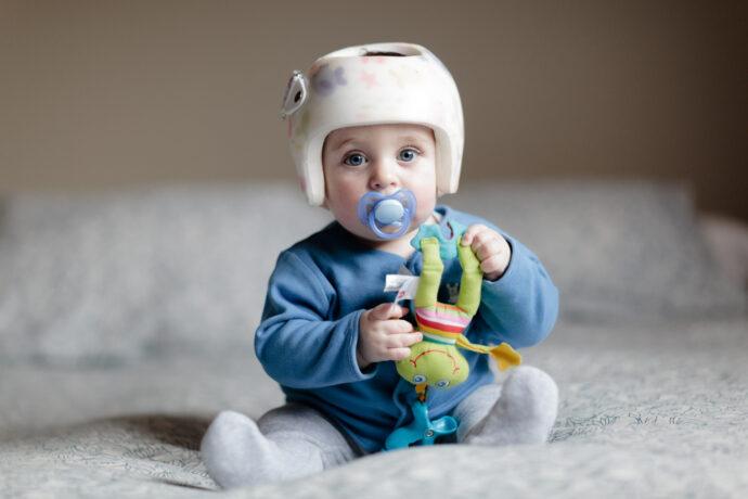 Helmtherapie beim Baby