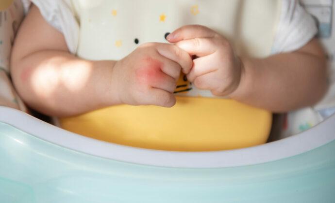 Wespenstich beim Kleinkind und Baby